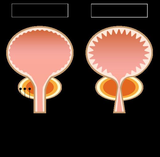 肥大 治療 前立腺 症